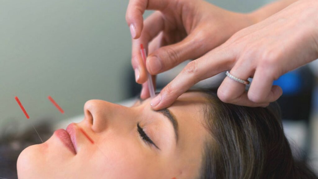 Acupuncture vs. Botox: What's the Winner?